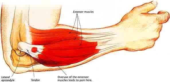 tennis-elbow-pain1